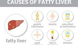 Wat is niet-alcoholische leververvetting (NAFLD) en hoe ontstaat het?
