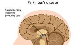 Nieuwe benadering Parkinson-onderzoek