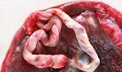 Waarom navelstrengbloed geven?