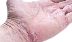 Wintertips voor psoriasis