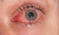 123-rood-oog-conjunctiv-07-16s.jpg