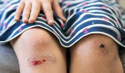 Moet u een schaaf- of snijwond afdekken?