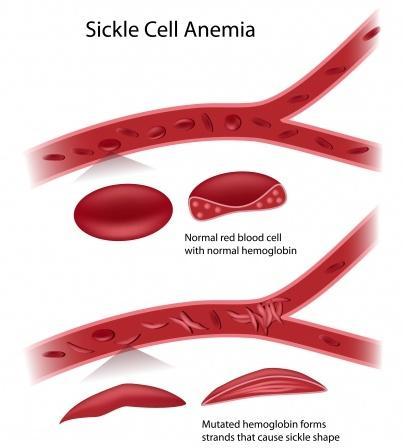 123-sikkelcelanemie-afw-bloedc-250-01.jpg