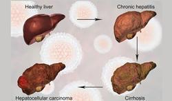 Leverfibrose vaststellen via een eenvoudige bloedtest.