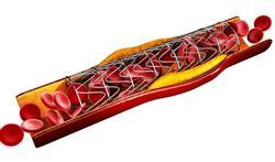 Vaker bloedstolsel bij oplosbare stent