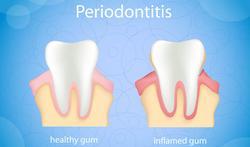 Veroorzaakt ontstoken tandvlees (parodontitis) kanker?