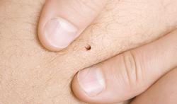 Wat kan je doen om de ziekte van Lyme te voorkomen?