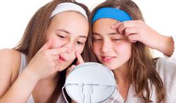 Welke rol spelen voedingsmiddelen bij acne?