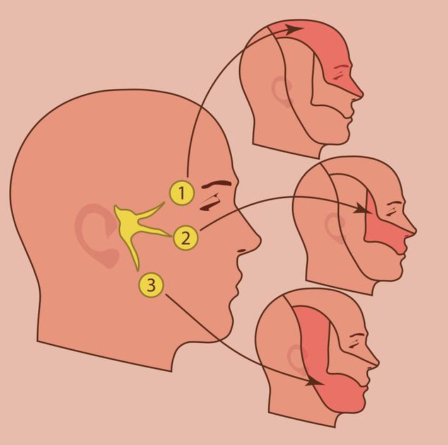 123-trigeminus-neuralg-hoofdp-1-03-19.png