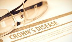 Nieuw bewijs dat biologisch medicijn helpt bij de ziekte van Crohn