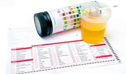 UAntwerpen zoekt vrijwillgers voor HPV-onderzoek