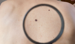 Veel huidkankers blijven onopgemerkt tijdens coronacrisis