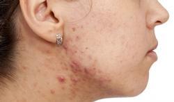 Is hormonale anticonceptie goed of slecht als u acne hebt?