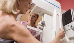 Nederlandse Senioren beginnen proces om borstkankeronderzoek