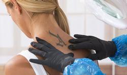Mag u met een nieuwe tatoeage in de zon?