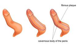 Kromstand van de penis of Ziekte van Peyronie