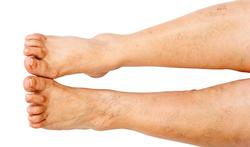 Pijnlijke benen door chronische veneuze insufficiëntie (CVI): oorzaken en behandeling