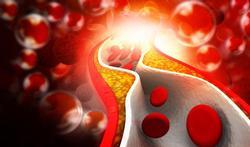 Moet je geneesmiddelen nemen om je cholesterol te verlagen?