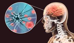 Meningitis: twee soorten