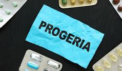 Progeria: oorzaak, symptomen en behandeling