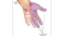 Tintelende of gevoelloze vingers? Denk aan het carpale tunnelsyndroom.
