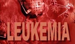 Uz Gent start met nieuwe behandeling voor leukemie