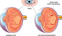 Wat is diabetische retinopathie en wat merkt u ervan?