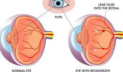 123h-diabet-retinopathie-01-19.jpg