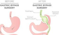 Voedingsaanpassingen na obesitaschirurgie