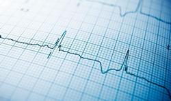 Virusmyocarditis: symptomen en behandeling
