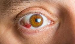 Wat doe je aan een bloeduitstorting in het wit van je oog?