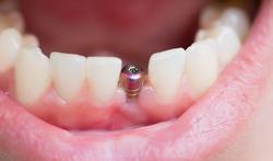 Geen tandimplantaat als u rookt?