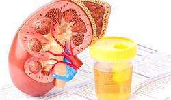 Hoe ontstaat acuut nierfalen?