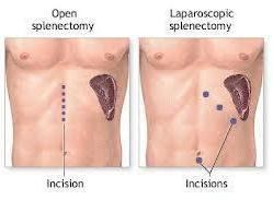 OP-afb-splenectom-lapar-chir.jpg