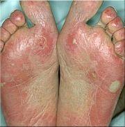 SLE-voeten-150.jpg