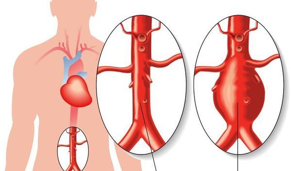 Aneurysma lies symptomen