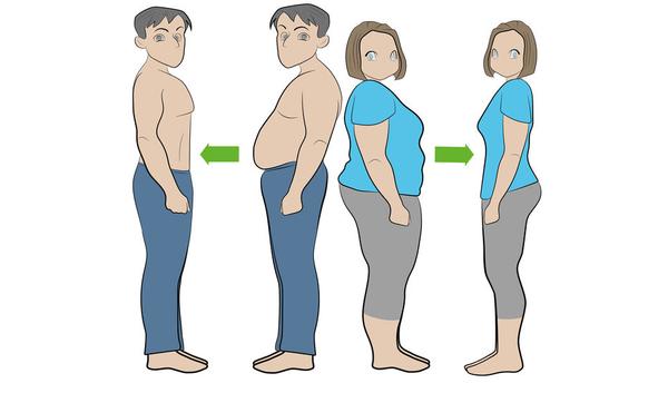 Maagverkleining door obesitaschirurgie of bariatrische
