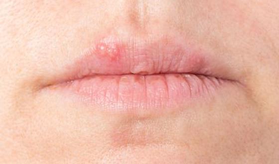 prueba de diabetes tintelende lippen