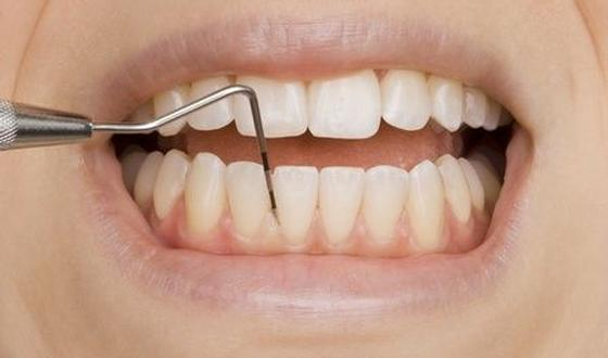 dieptereiniging tanden