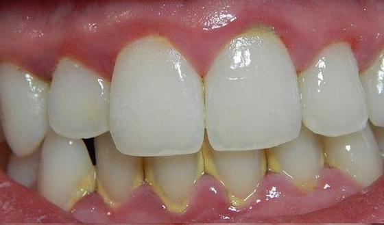 lichen planus mond