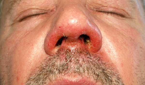 Impetigo Of Krentenbaard Bacteriële Huidinfectie Gezondheidbe