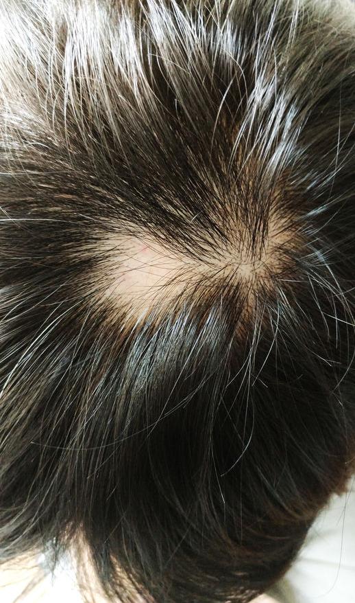f--123-alopecia-areata-10-18.png