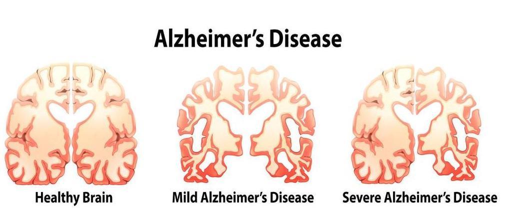 f--123-scan-hers-dement-alzh-09-18.jpg