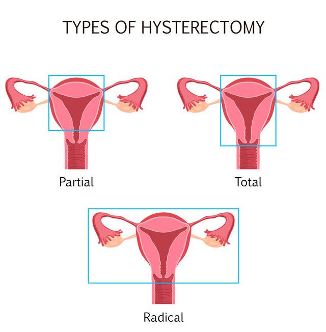 f-123-anatom-soorten-hysterect-gyna-1-01-19.png