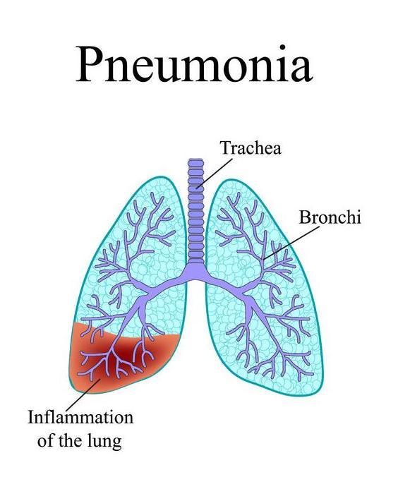 f-123-pneumonie-longontstek-anatom-03-18.jpg