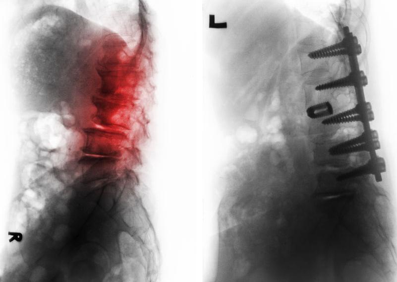 f-123-rx-spondylosis-fixatie-08-17.jpg