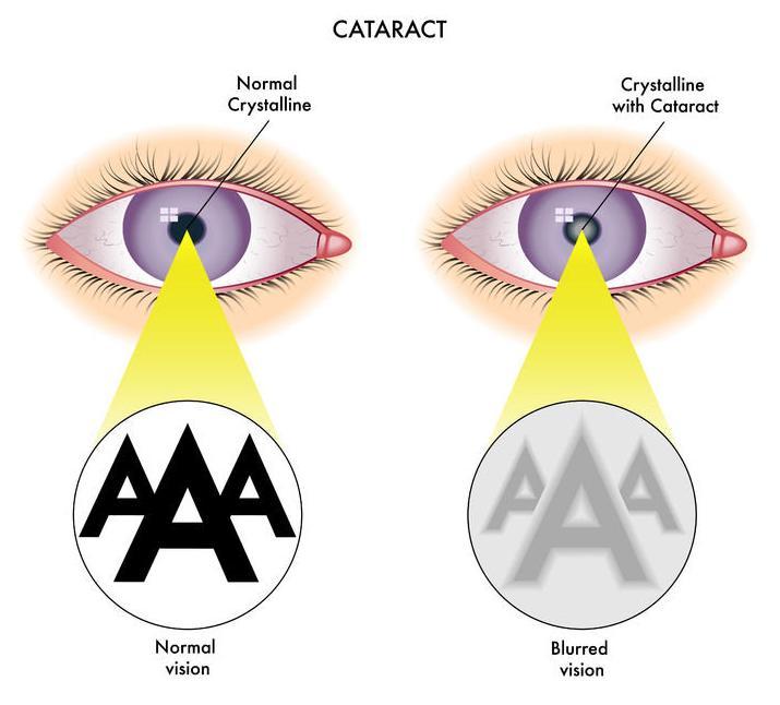 f-123-tek-cataractanatom-12-17.jpg