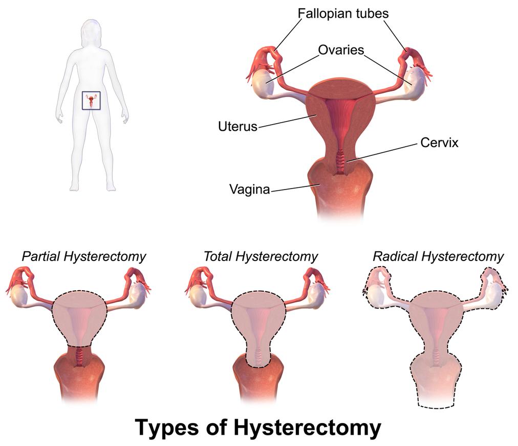 f-123-wikim-soorten-hysterectomie-01-19.png