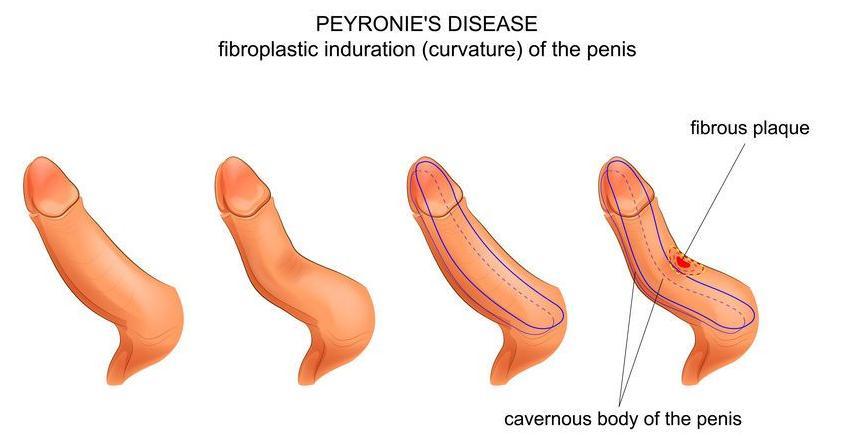 f-123-z-van-Peyronie-kromstand-penis-02-19.jpg