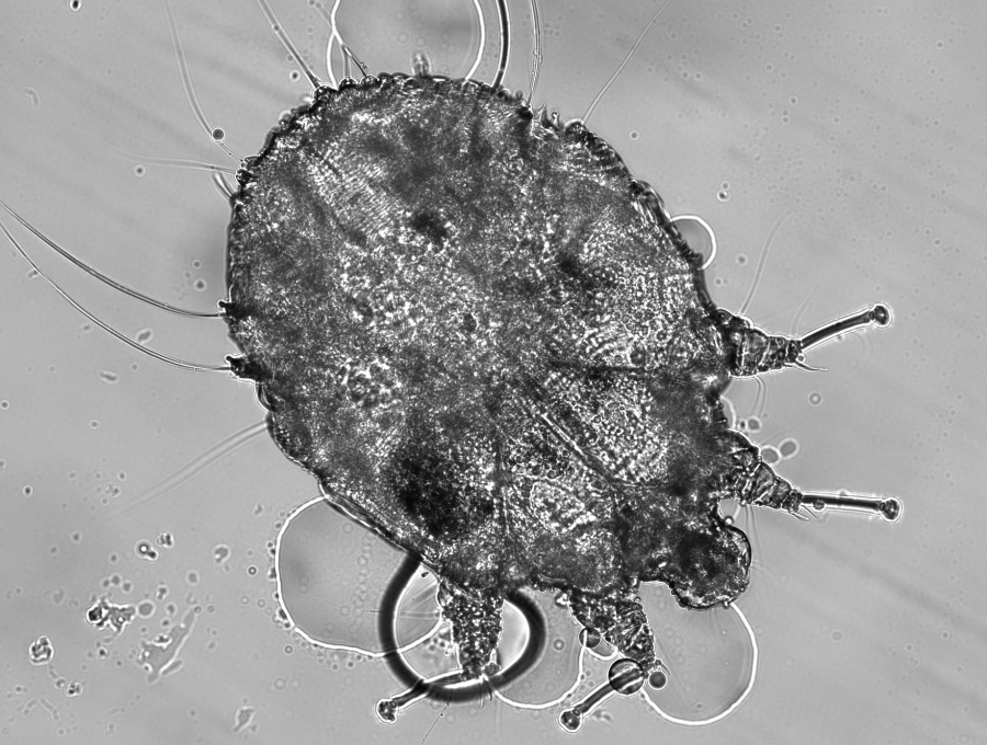 f-wikim-Scabies-12-18.png